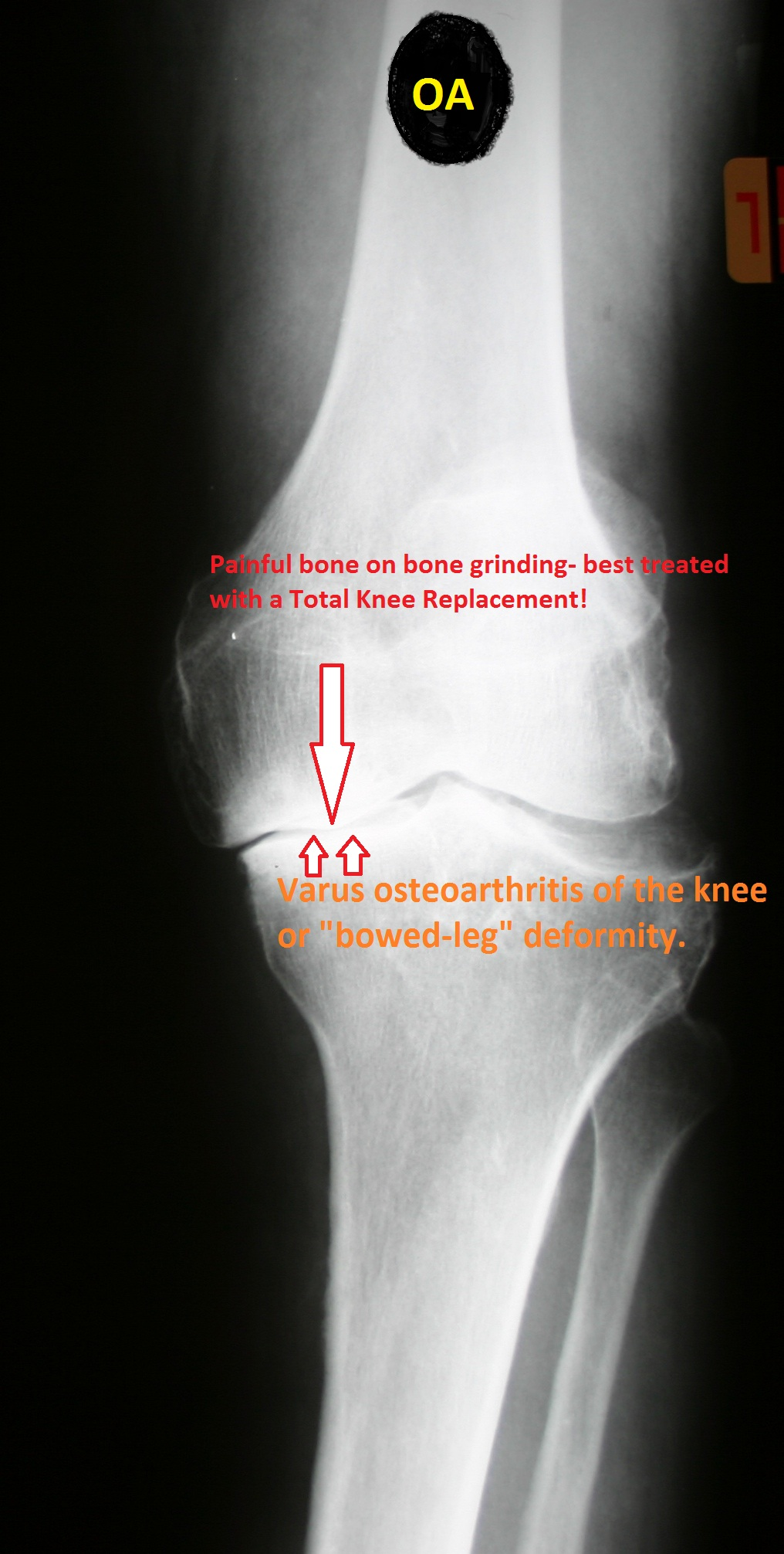 arthritic knee (2)